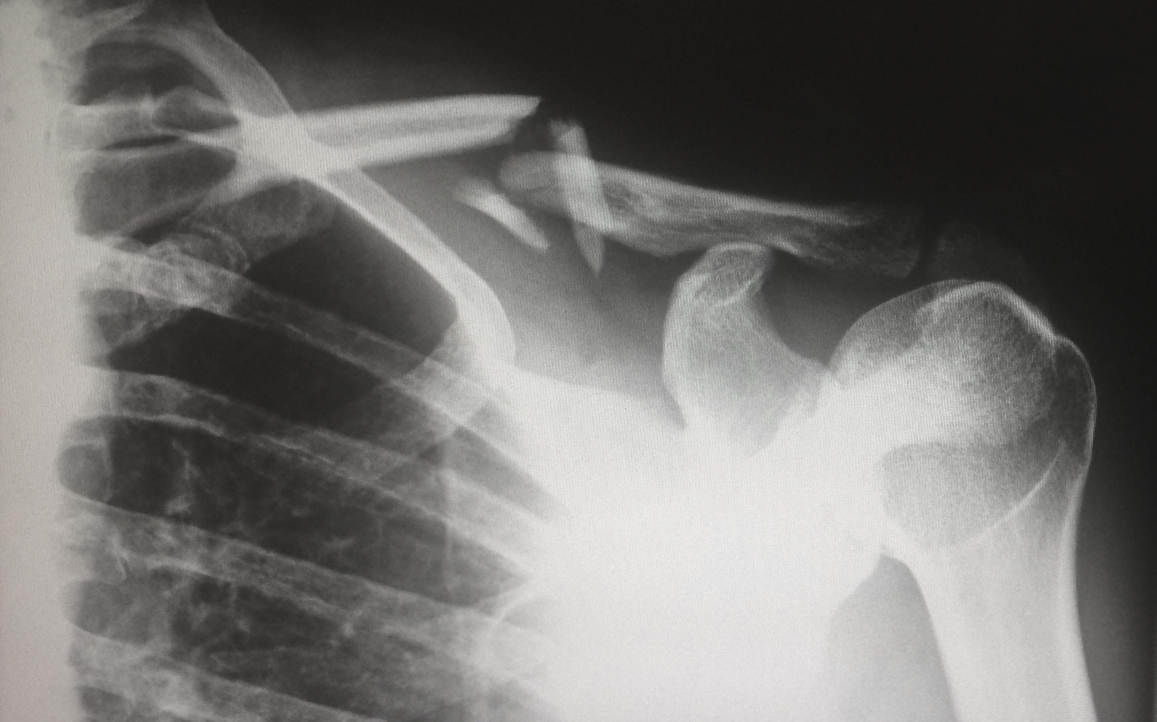 Lastra di una clavicola rotta
